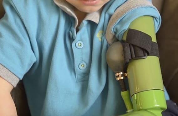Gracias a un enfermo terminal, un niño ingles ha obtenido un brazo ortopédico robotizado